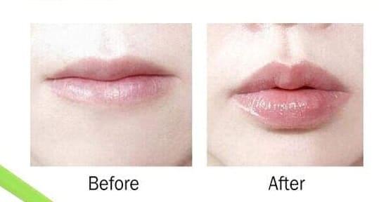 succionador labios antes despues