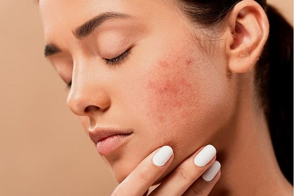 jabon cetaphil acne